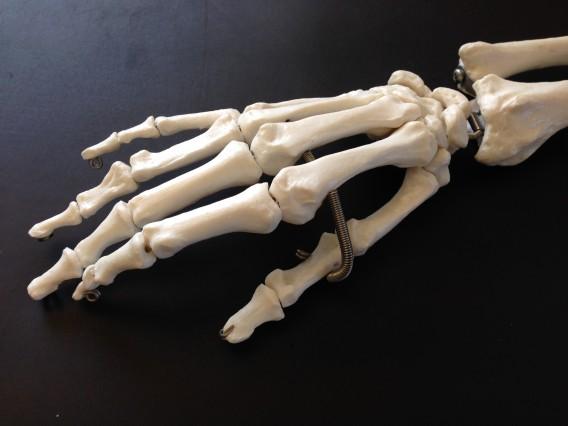 腱鞘炎の症例